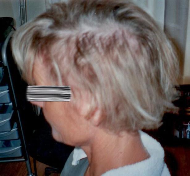 skorv hårbotten behandling