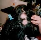 håravfall ung kvinna